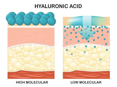 wrinkle skin hyaluronic-acid