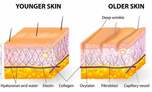 wrinkle-skin