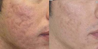 removal acne scar cream results