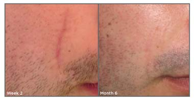 best scar removal cream skinmedica-result
