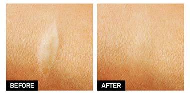 scar-removal cream aroamas results