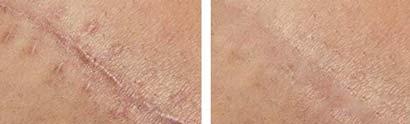 scar-removal-cream-xscar-silicone-result