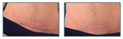 scar-removal-treatment-aroamas-results
