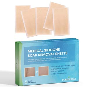 scar-removal-treatment-puriderma