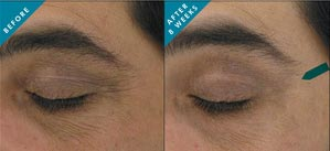 anti-aging-eye-cream-skinceuticals-results
