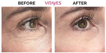 anti-aging-eye-cream-vitayes-results