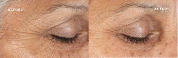 eye-cream-for-wrinkle-strivectin-results