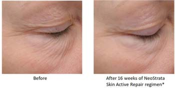 neostrata-eye-cream-therapy-results